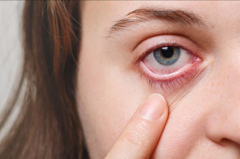 Optometrist Seeing Red
